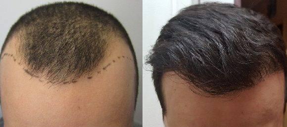 NON-Surgical Hair Transplantation